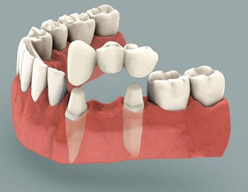 dental bridge work