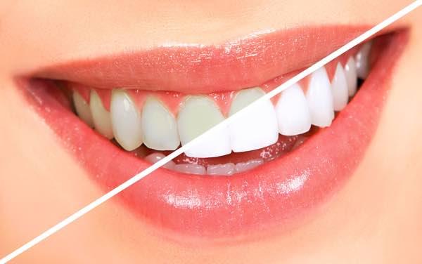 Cheap teeth whitening treatment