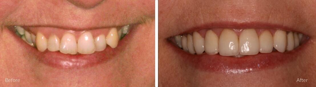 New Smile Dental Perth - Porcelain crowns & veneers
