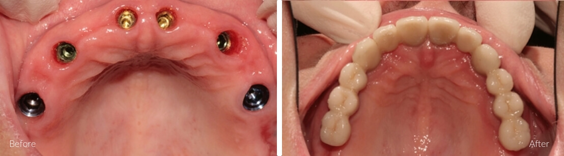 New Smile Dental Perth - Implants for single and multiple teeth