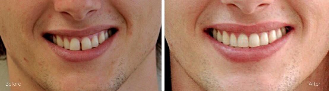 New Smile Dental Perth - Invisalign & orthodontics